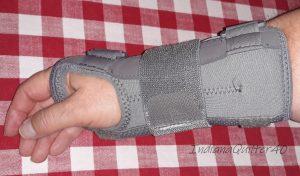 My arm in a brace.